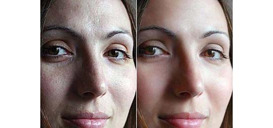 34. Soften Skin Effect